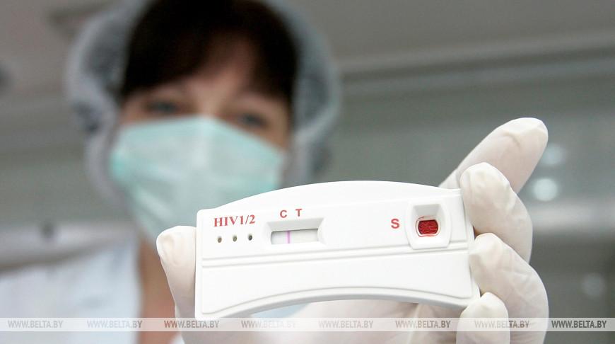 В Брестской области за январь-август выявлено 105 случаев ВИЧ-инфекции