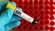 Белорусское общество стало более толерантным к ВИЧ-позитивным людям