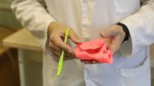 В Беларуси провели две уникальные операции с помощью 3D-моделей сердца