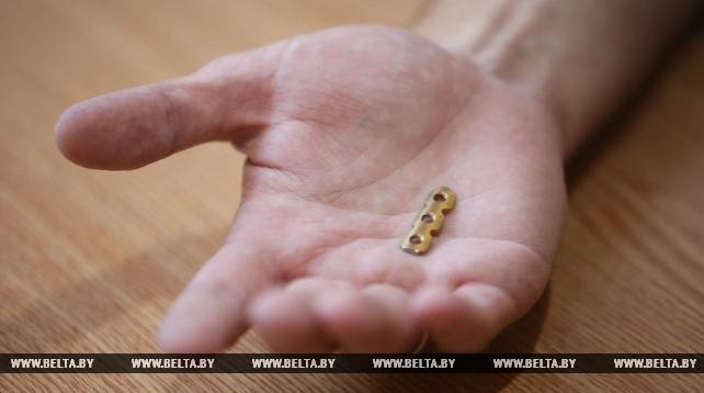 Белорусские онкологи впервые установили пациенту титановое ребро